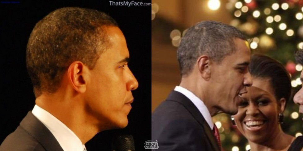 Шрам Обамы